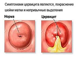 slizistaya-vlagalisha-rozovaya